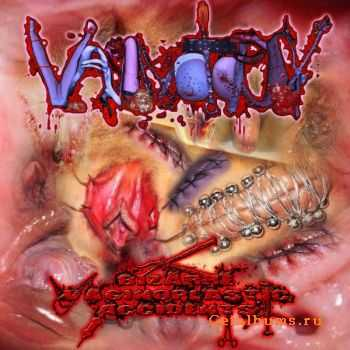 Vaginotopsy - Bizarre Vaginoplastic Accidents (Promo) (2011)