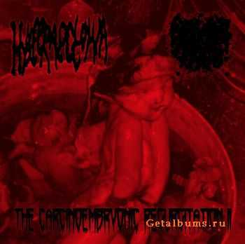 Hysteraectomia & Spitting Womb - The Carcinoembryonic Regurgitation II (2012)