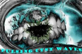 Dentalcyst - Pulsing Cyst Waves [EP] (2012)