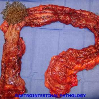 Pathological Infection Of The Pancreas - Gastrointestinal Pathology (EP) (2013)