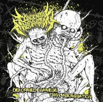 Congenital Malformation - Siamese Twin Abomination (2013)