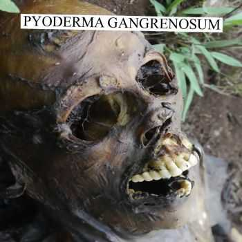 Pyoderma Gangrenosum - Session 1 (2015)